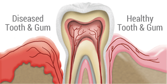 Gum Disease Treatment in Toronto